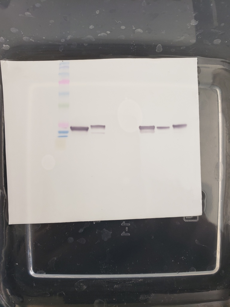 Western blot of myosin proteins in various tissue samples